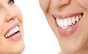 malocluzia dentara