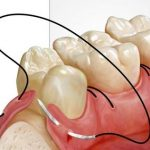 urgente stomatologice